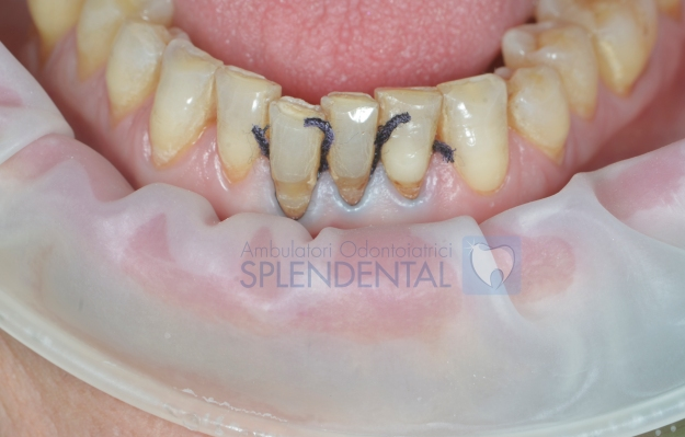 I tre elementi inferiori pronti per il trattamento dopo l'isolamento con diga optragate e filo retrattore.