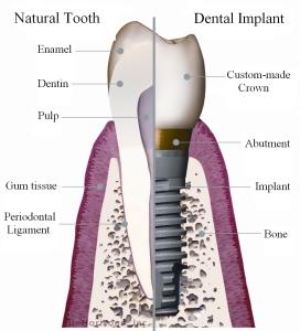 Schema dente naturale - impianto