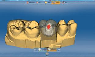 Progettazione abutment con software 3D Cerec, vista frontale